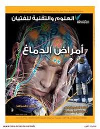 العدد الأول- يوليو 2012 - أمراض الدماغ - مجلة العلوم والتقنية